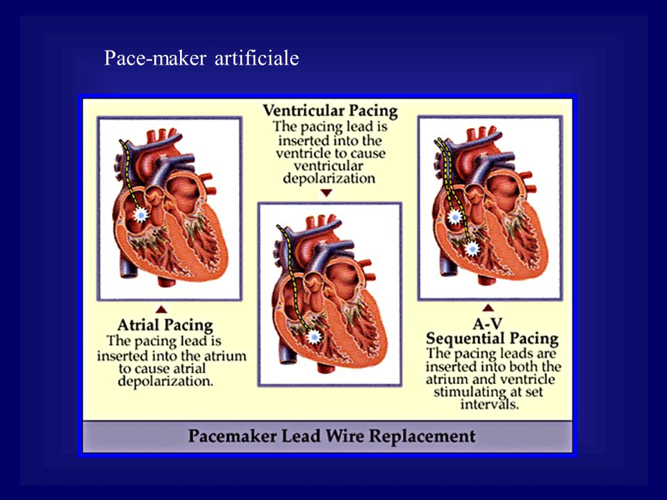 Pace-maker artificiale