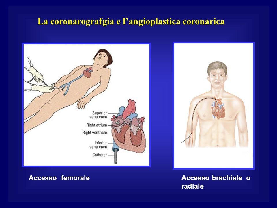 La coronarografgia e l'angioplastica coronarica