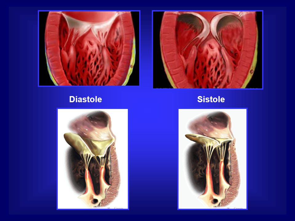Diastole Sistole