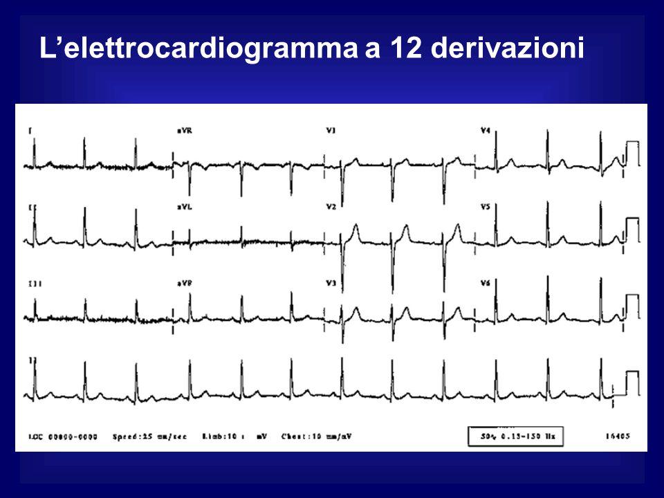 L'elettrocardiogramma a 12 derivazioni