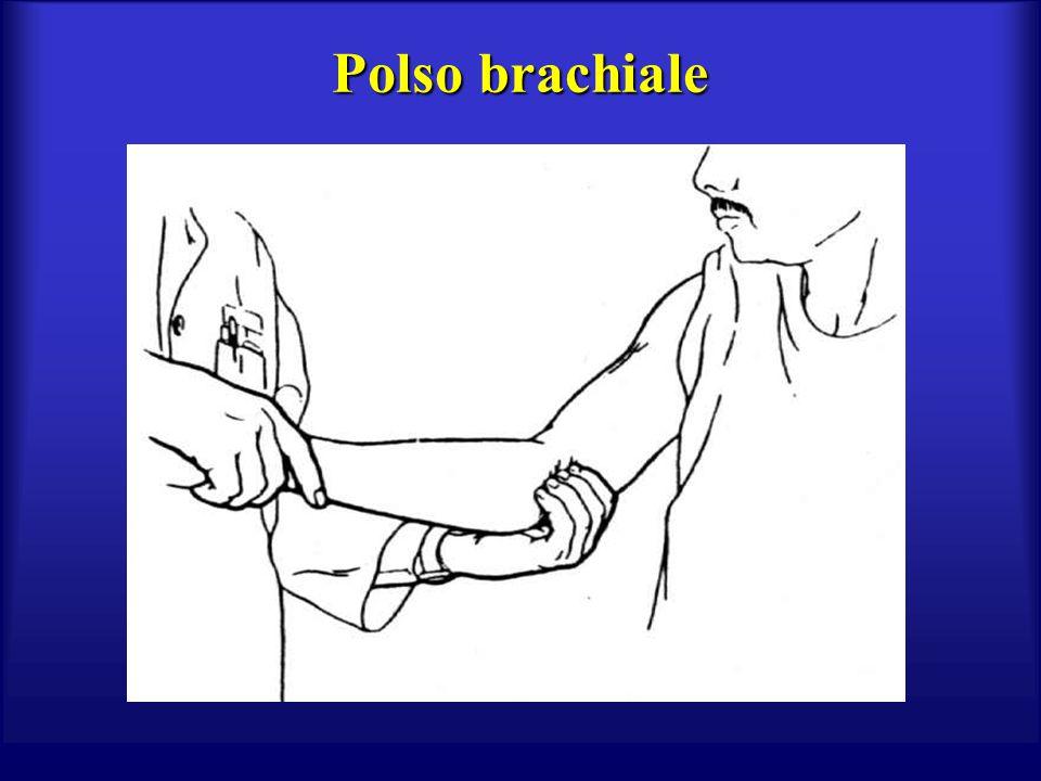 Polso brachiale