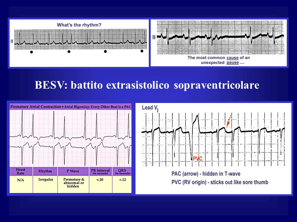 BESV: battito extrasistolico sopraventricolare