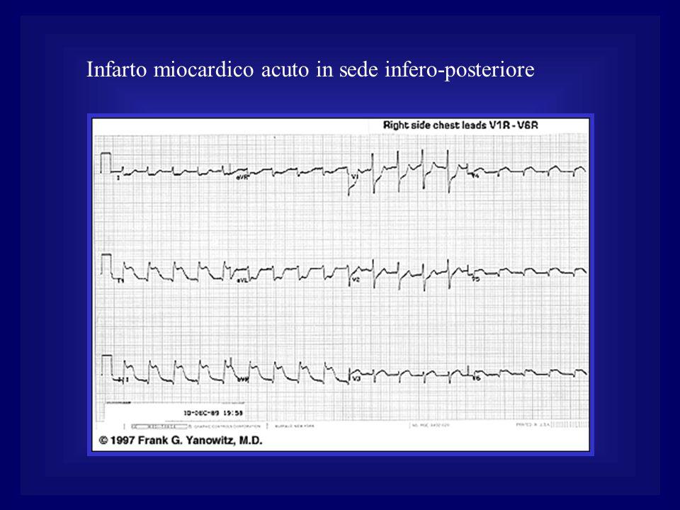 Infarto miocardico acuto in sede infero-posteriore