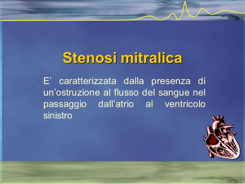 Stenosi mitralica E' caratterizzata dalla presenza di un'ostruzione al flusso del sangue nel passaggio dall'atrio al ventricolo sinistro.