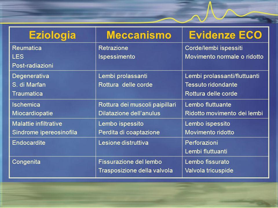 Eziologia Meccanismo Evidenze ECO