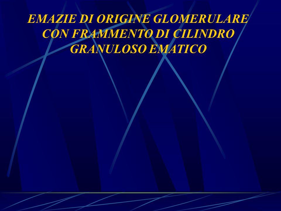 EMAZIE DI ORIGINE GLOMERULARE CON FRAMMENTO DI CILINDRO GRANULOSO EMATICO
