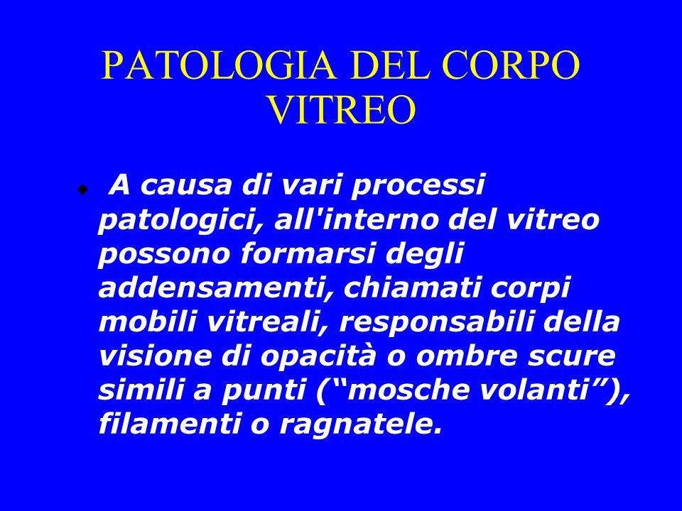 PATOLOGIA DEL CORPO VITREO