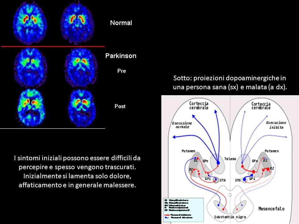 Sotto: proiezioni dopoaminergiche in una persona sana (sx) e malata (a dx).