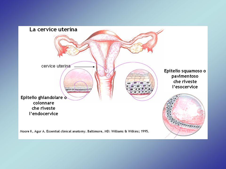 La cervice è situata sotto l'utero e rappresenta la sede di insorgenza del carcinoma della cervice uterina