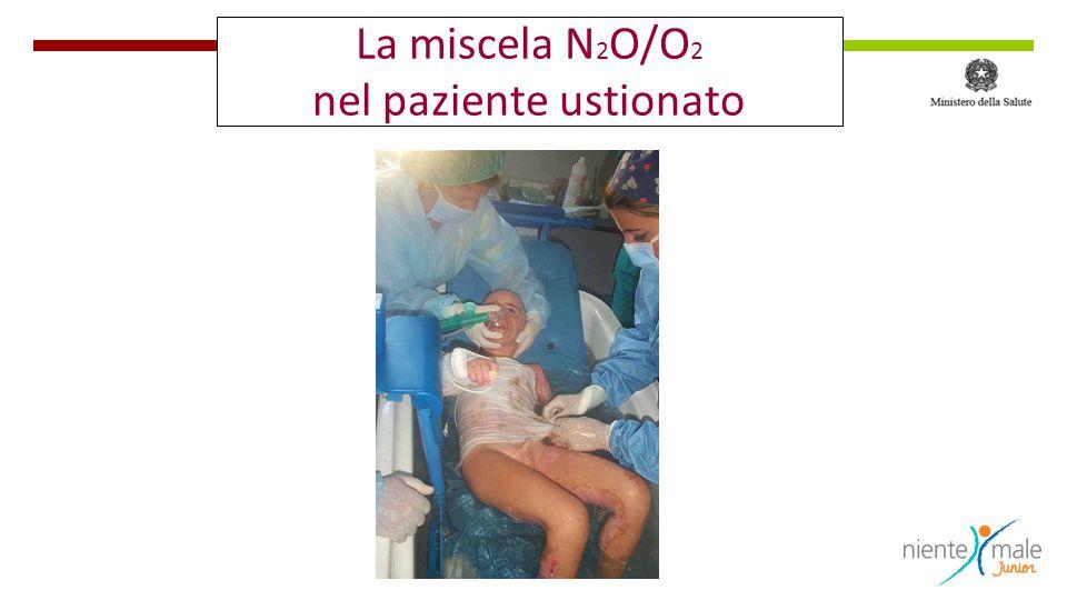 La miscela N2O/O2 nel paziente ustionato