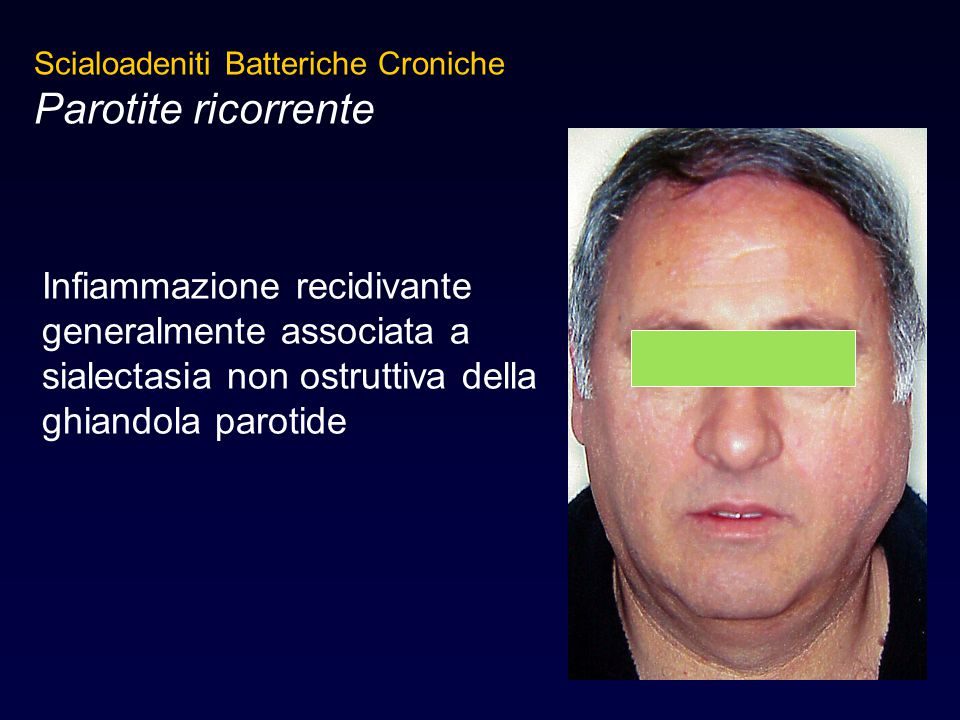 Scialoadeniti Batteriche Croniche