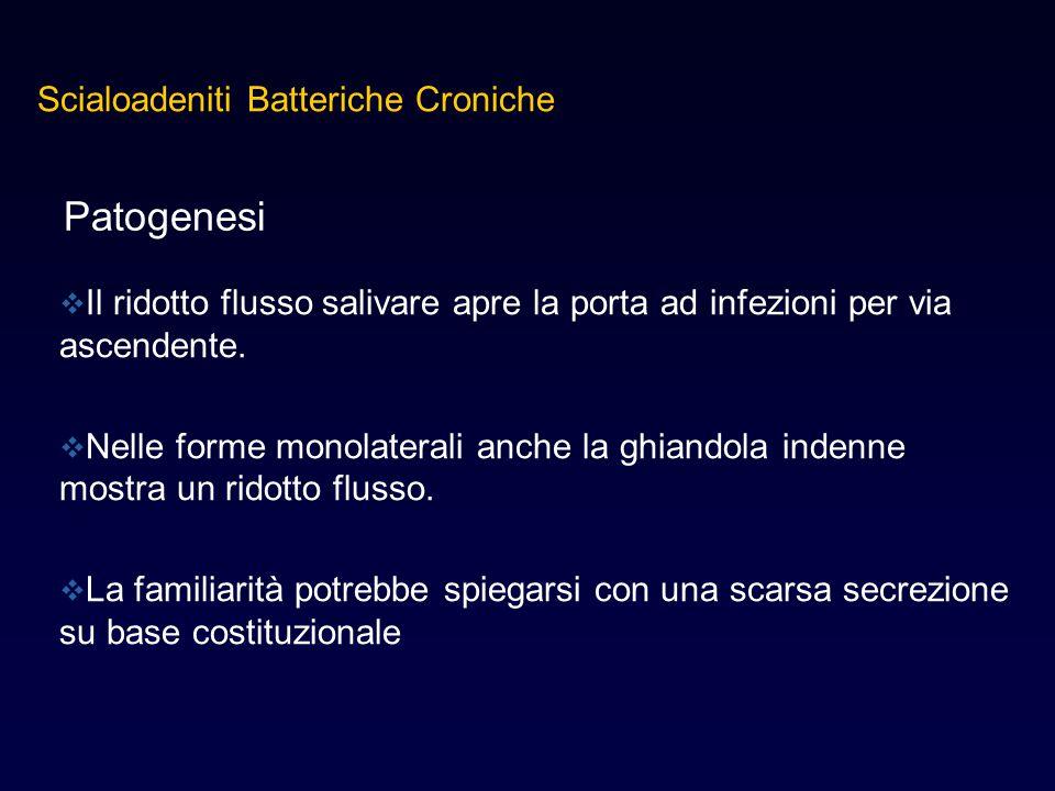 Patogenesi Scialoadeniti Batteriche Croniche
