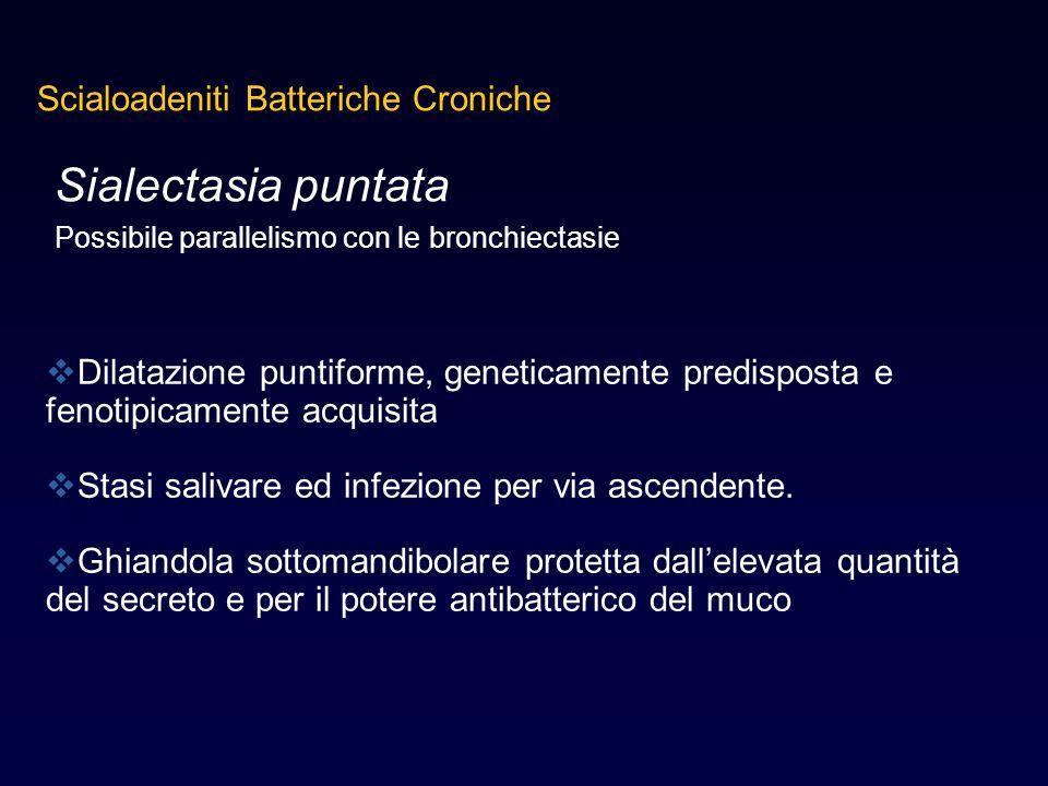 Sialectasia puntata Possibile parallelismo con le bronchiectasie