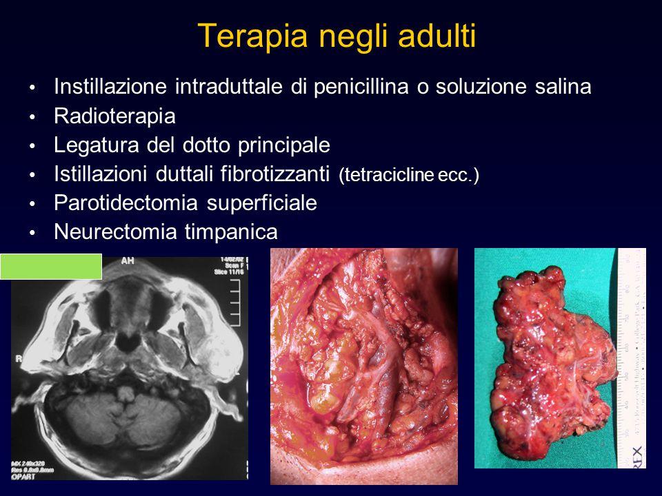 Terapia negli adulti Instillazione intraduttale di penicillina o soluzione salina. Radioterapia. Legatura del dotto principale.