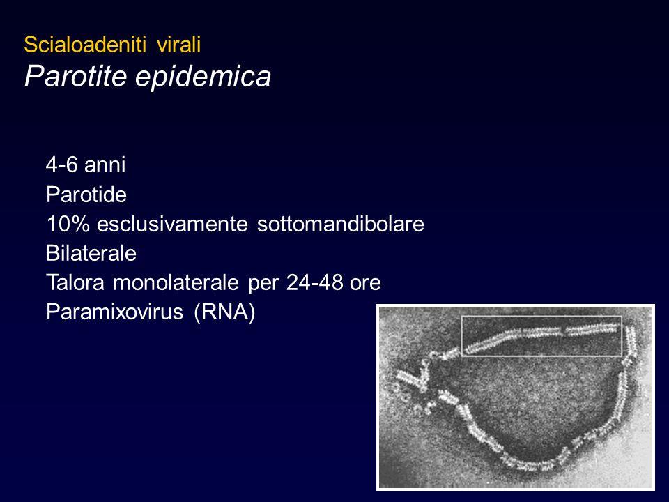 Parotite epidemica Scialoadeniti virali 4-6 anni Parotide