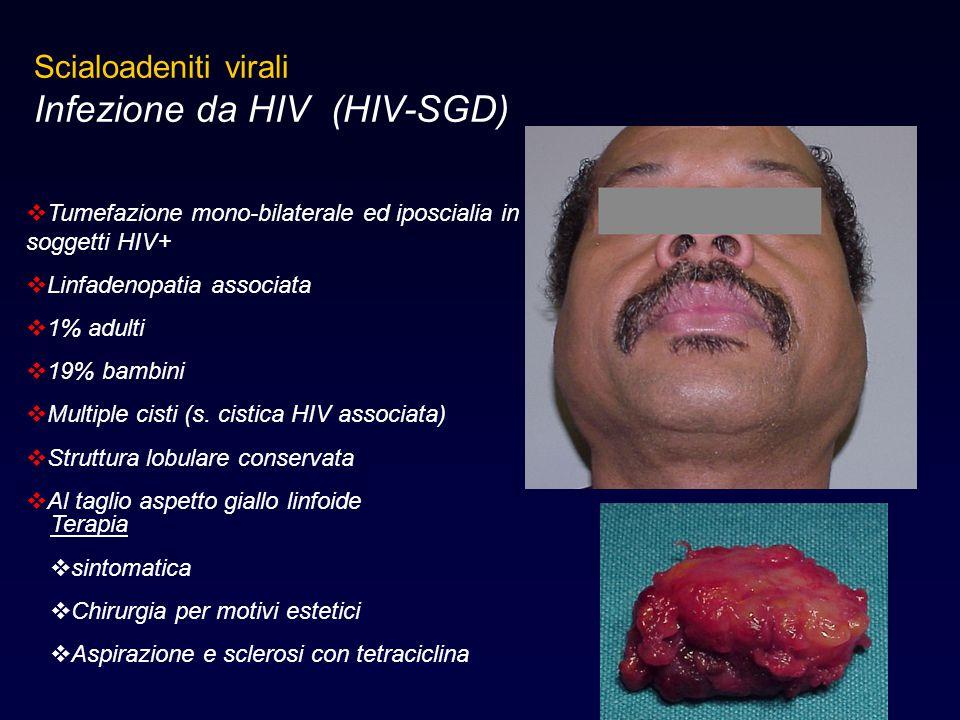 Infezione da HIV (HIV-SGD)
