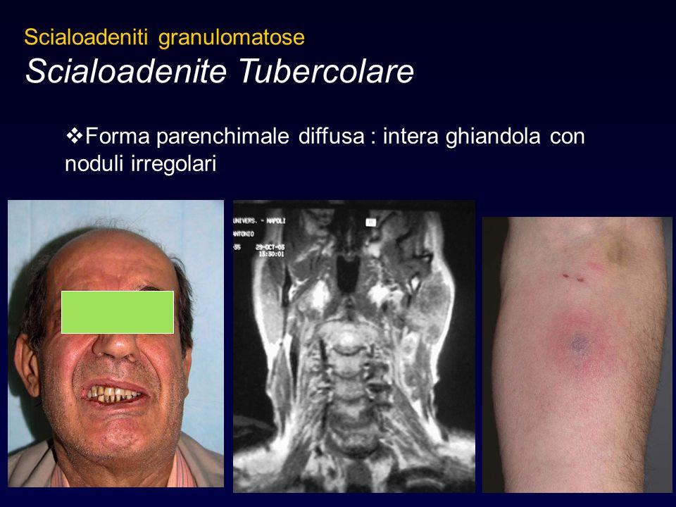 Scialoadenite Tubercolare
