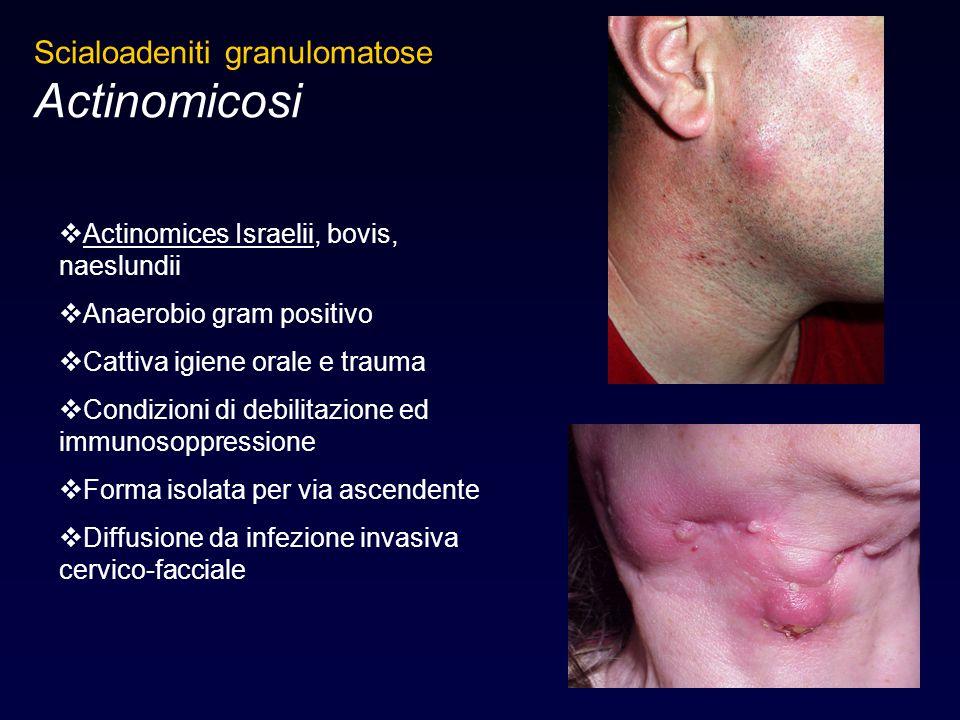 Actinomicosi Scialoadeniti granulomatose