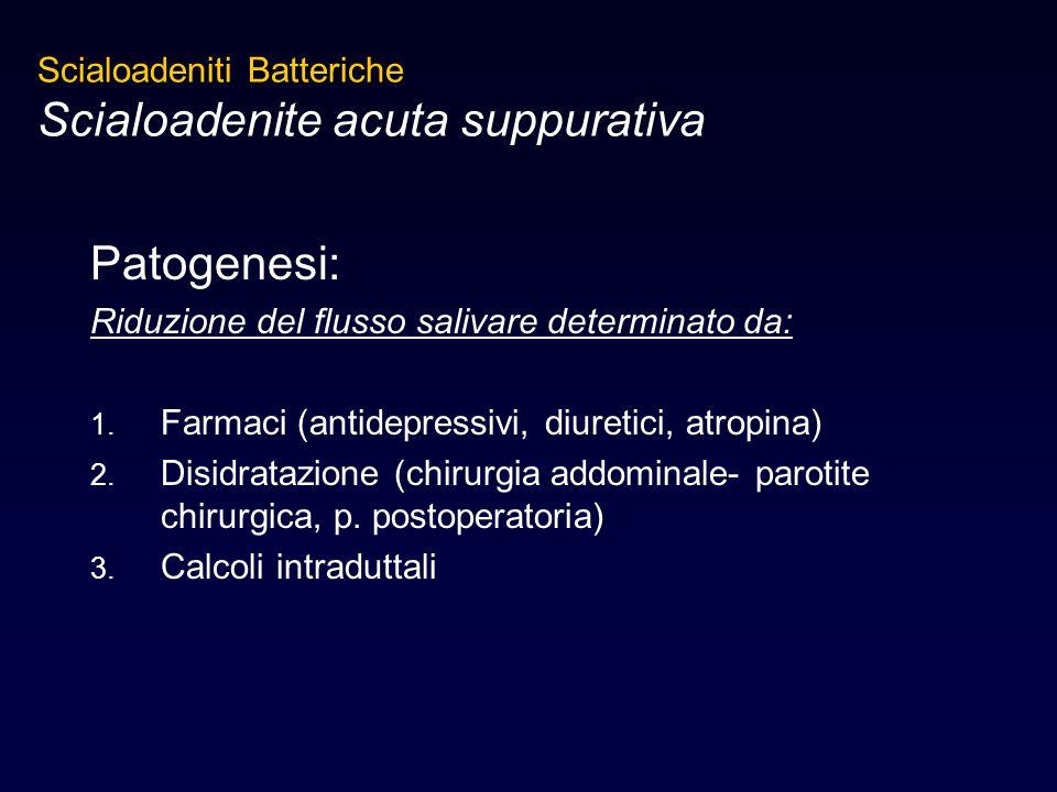 Scialoadenite acuta suppurativa