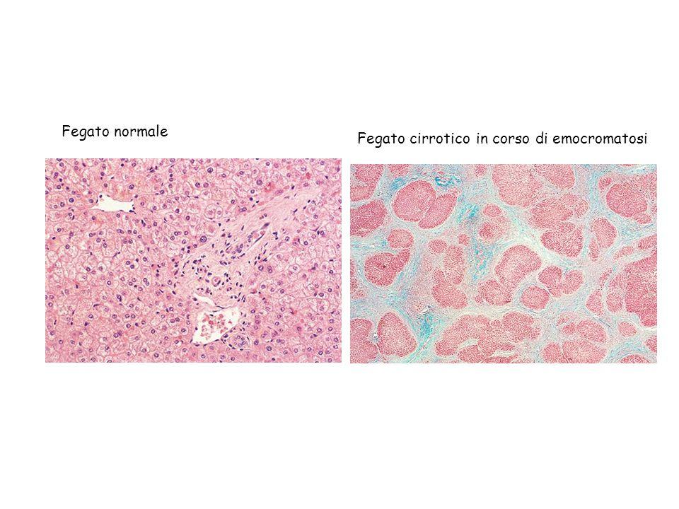 Fegato normale Fegato cirrotico in corso di emocromatosi