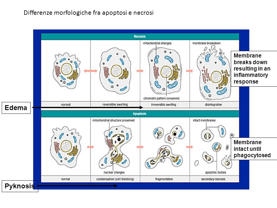 Differenze morfologiche fra apoptosi e necrosi
