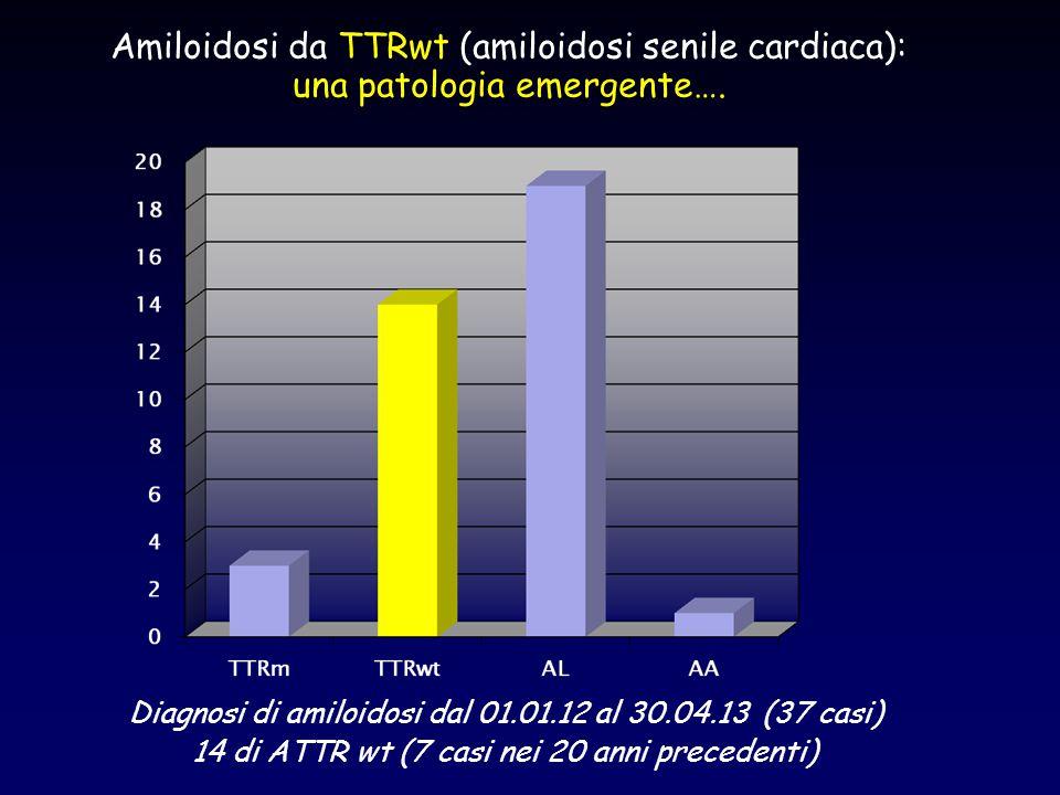 Amiloidosi da TTRwt (amiloidosi senile cardiaca):