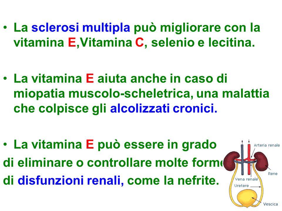 La sclerosi multipla può migliorare con la vitamina E,Vitamina C, selenio e lecitina.