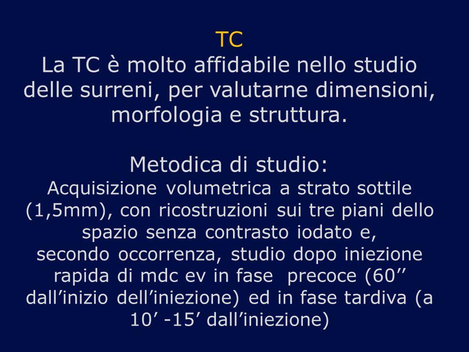 TC La TC è molto affidabile nello studio delle surreni, per valutarne dimensioni, morfologia e struttura.