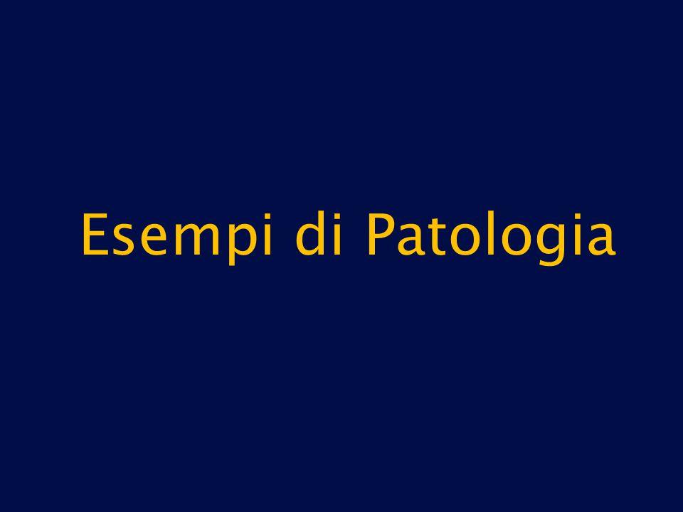 Esempi di Patologia