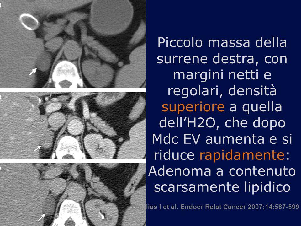 Piccolo massa della surrene destra, con margini netti e regolari, densità superiore a quella dell'H2O, che dopo Mdc EV aumenta e si riduce rapidamente: Adenoma a contenuto scarsamente lipidico