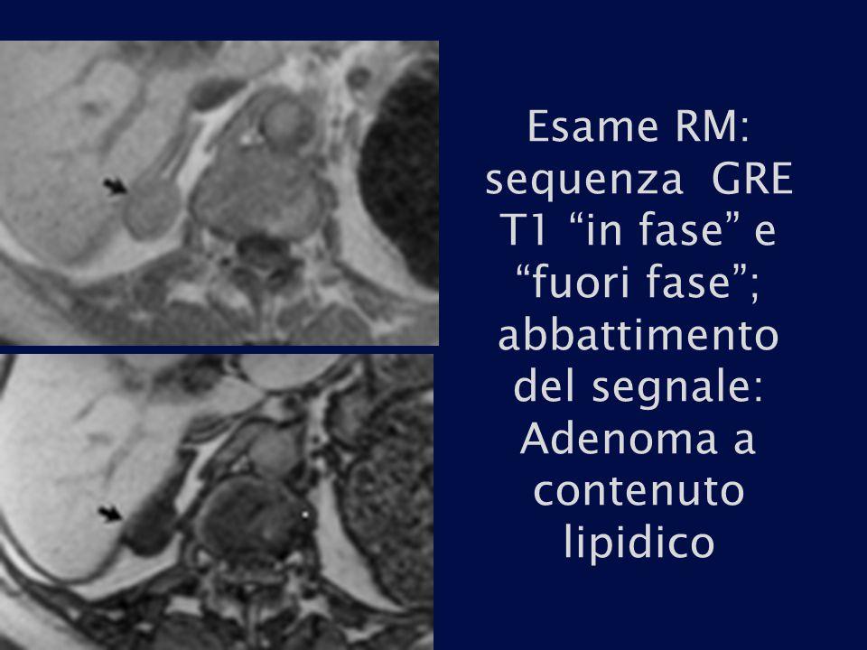 Esame RM: sequenza GRE T1 in fase e fuori fase ; abbattimento del segnale: Adenoma a contenuto lipidico