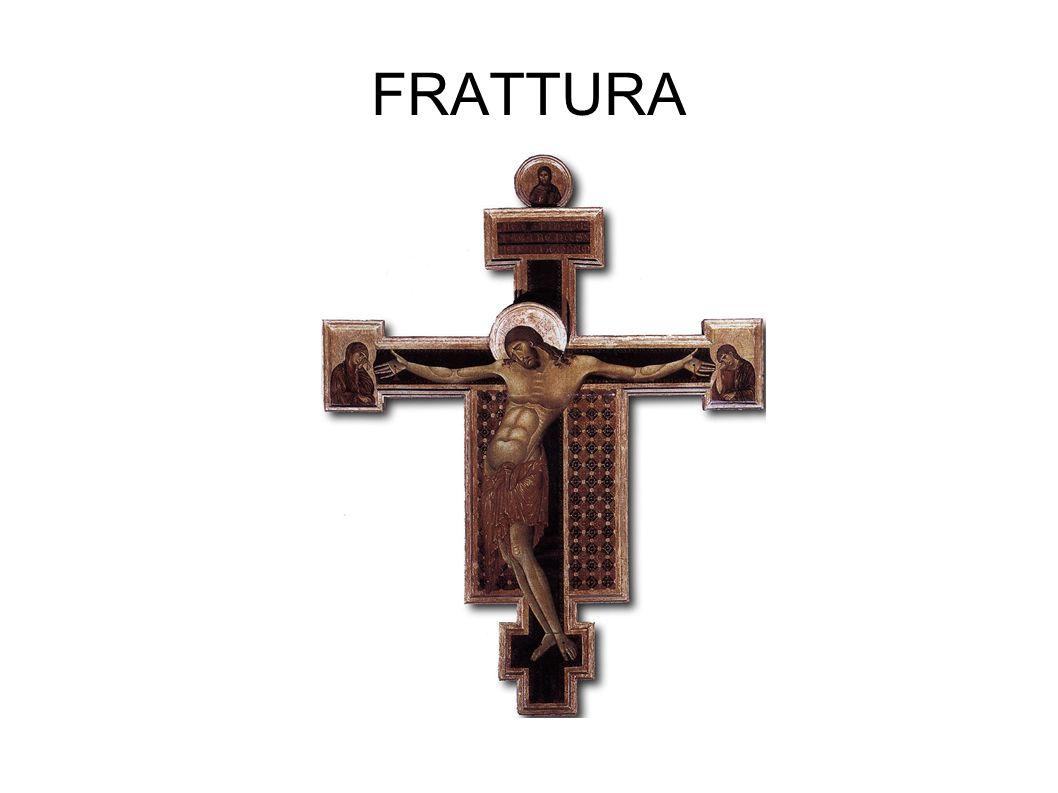 FRATTURA