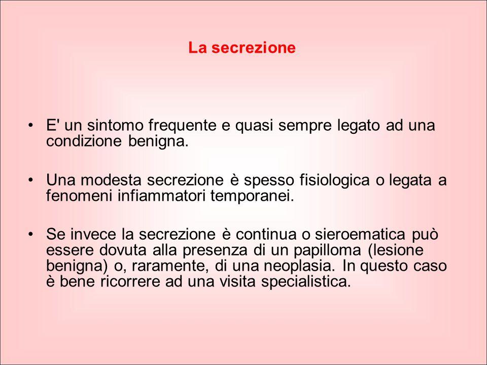 La secrezione E un sintomo frequente e quasi sempre legato ad una condizione benigna.