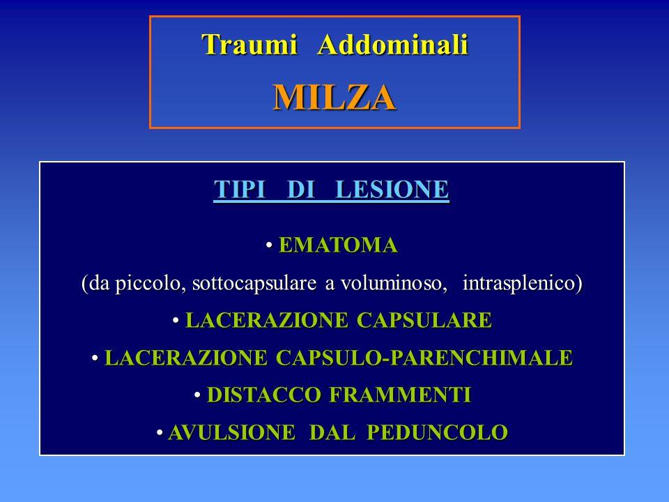 MILZA Traumi Addominali TIPI DI LESIONE EMATOMA