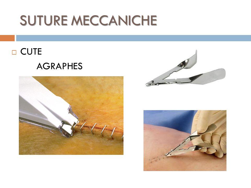SUTURE MECCANICHE CUTE AGRAPHES