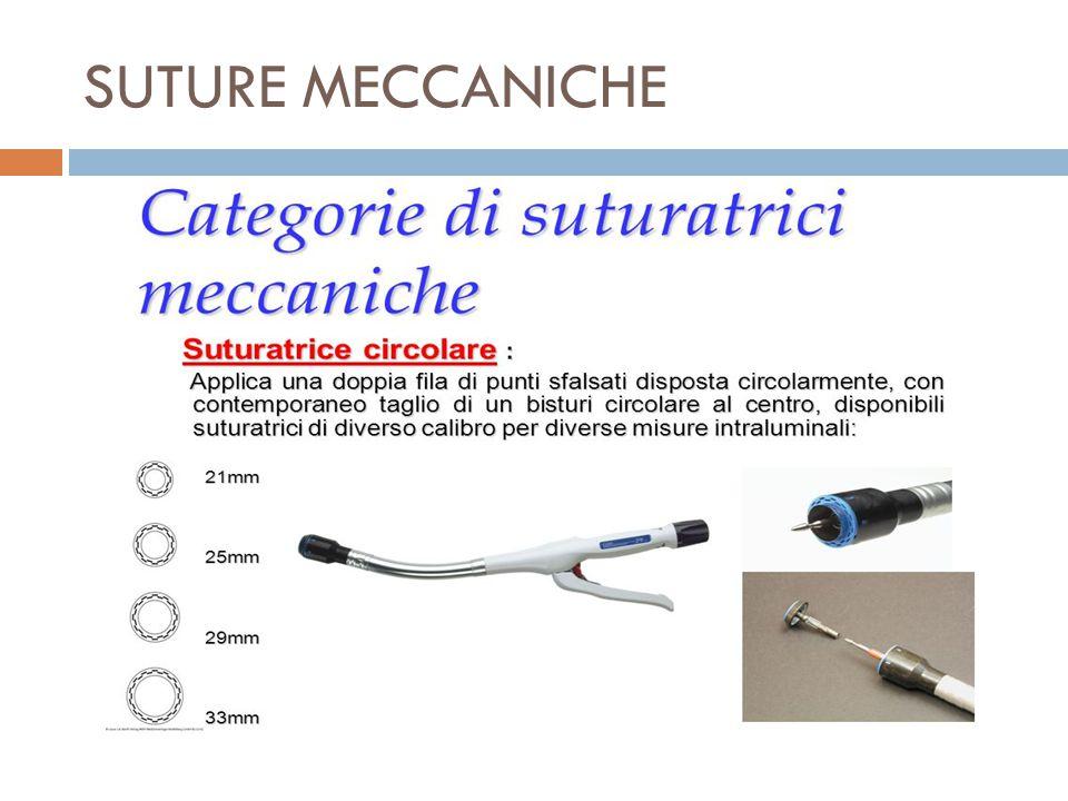 SUTURE MECCANICHE