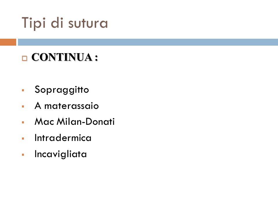 Tipi di sutura CONTINUA : Sopraggitto A materassaio Mac Milan-Donati