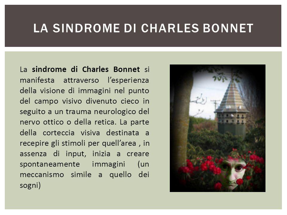 La Sindrome di Charles Bonnet
