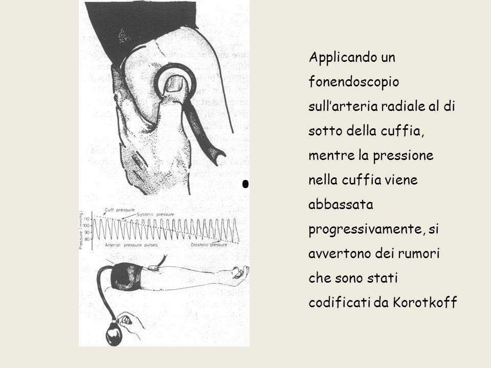 Applicando un fonendoscopio sull'arteria radiale al di sotto della cuffia, mentre la pressione nella cuffia viene abbassata progressivamente, si avvertono dei rumori che sono stati codificati da Korotkoff