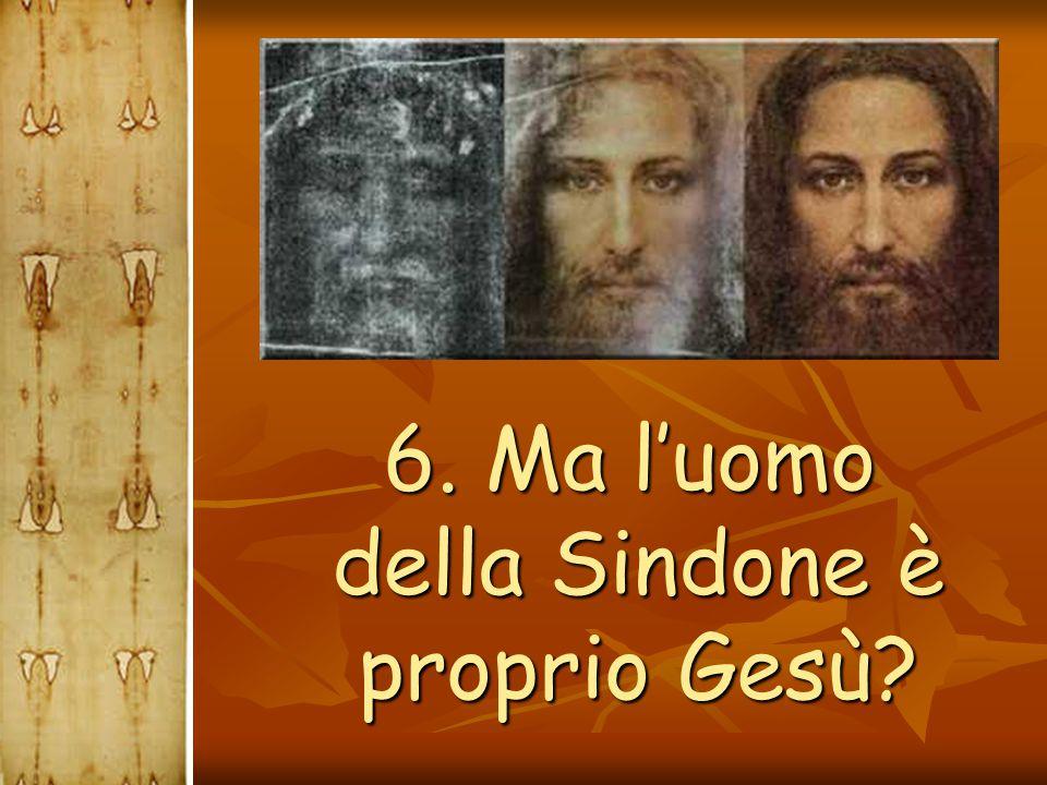 6. Ma l'uomo della Sindone è proprio Gesù