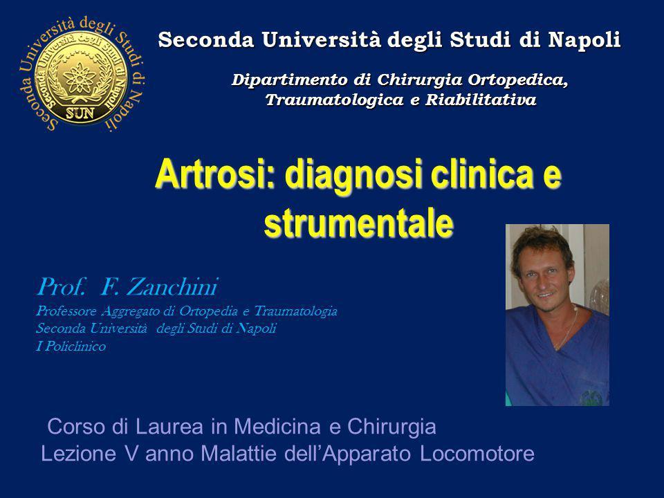 Artrosi: diagnosi clinica e strumentale