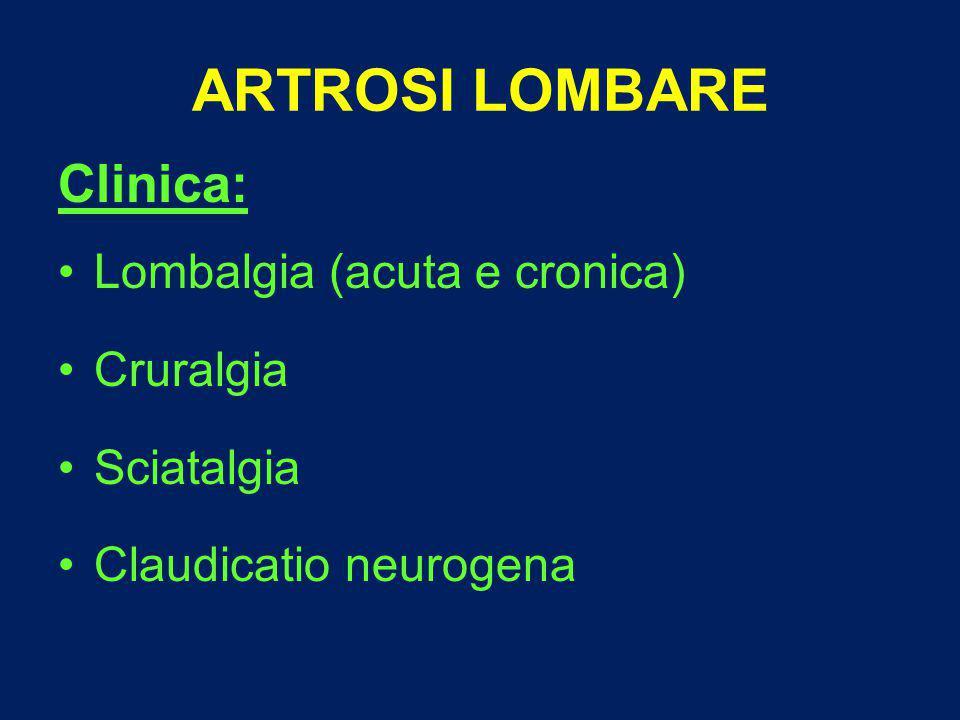 ARTROSI LOMBARE Clinica: Lombalgia (acuta e cronica) Cruralgia