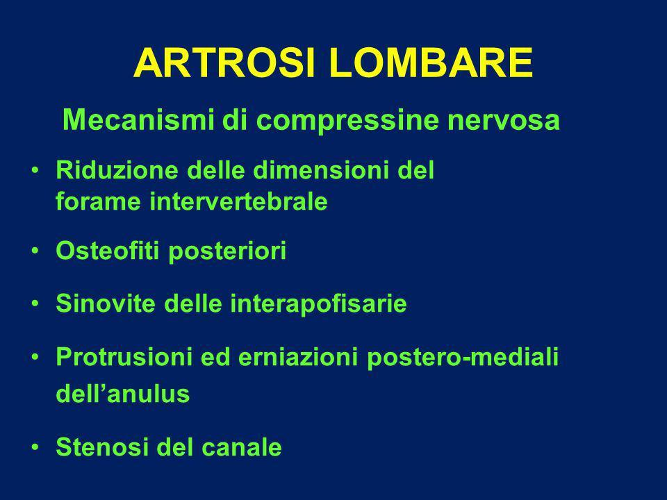 ARTROSI LOMBARE Mecanismi di compressine nervosa