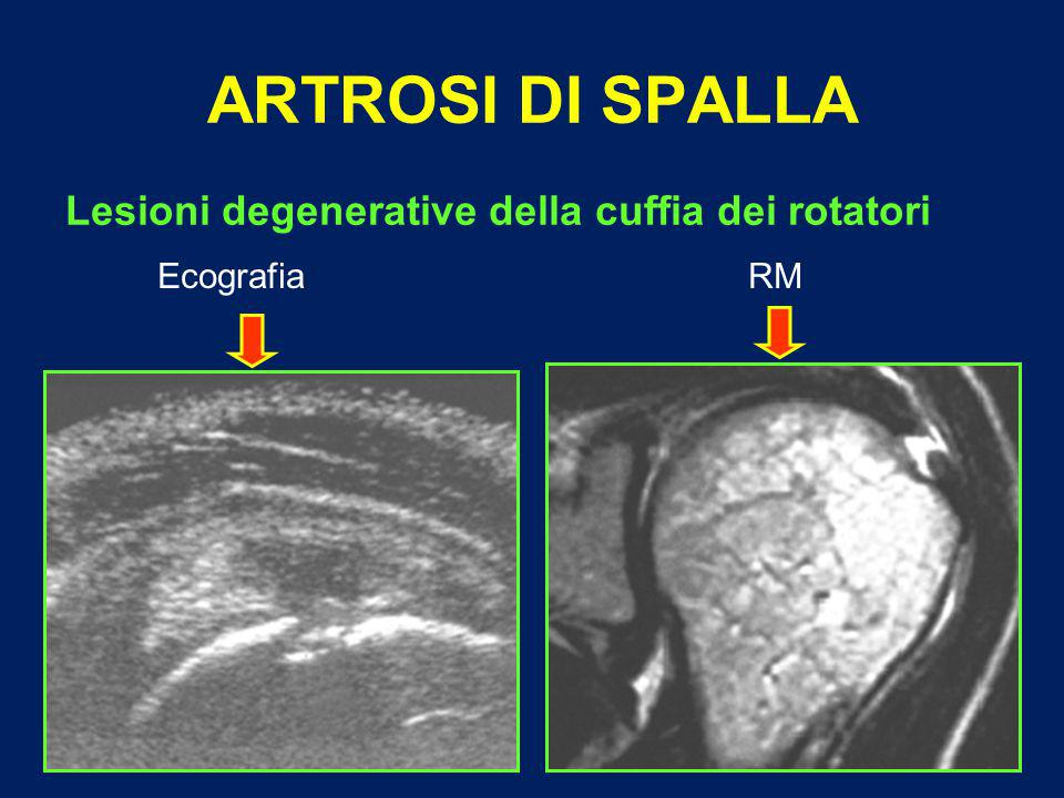 ARTROSI DI SPALLA Lesioni degenerative della cuffia dei rotatori