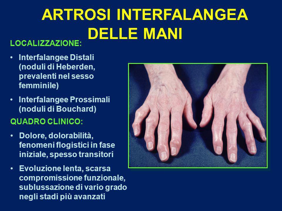 ARTROSI INTERFALANGEA DELLE MANI