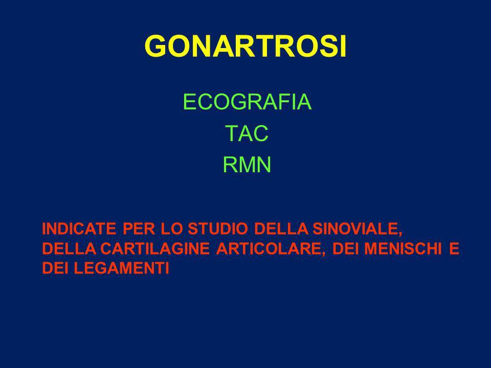 GONARTROSI ECOGRAFIA TAC RMN INDICATE PER LO STUDIO DELLA SINOVIALE,