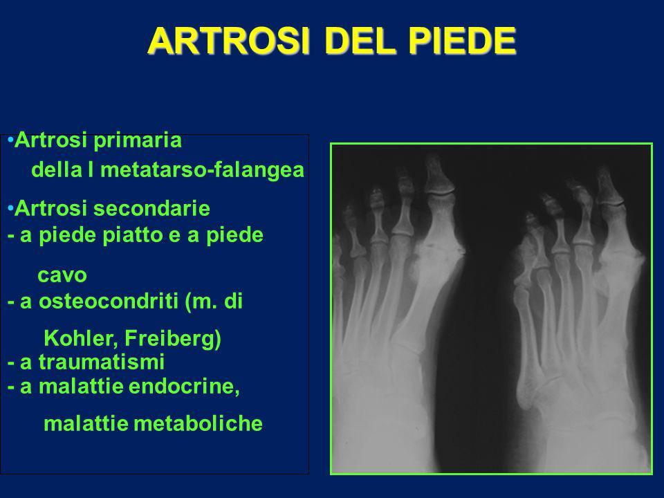 ARTROSI DEL PIEDE Artrosi primaria della I metatarso-falangea