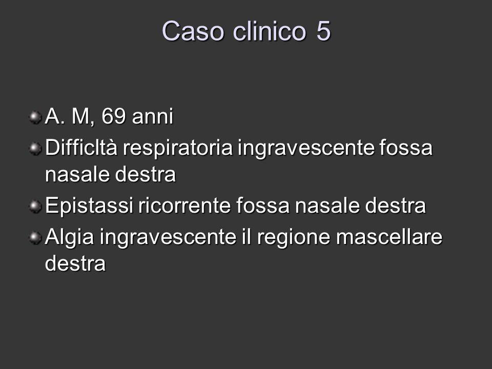 Caso clinico 5 A. M, 69 anni. Difficltà respiratoria ingravescente fossa nasale destra. Epistassi ricorrente fossa nasale destra.