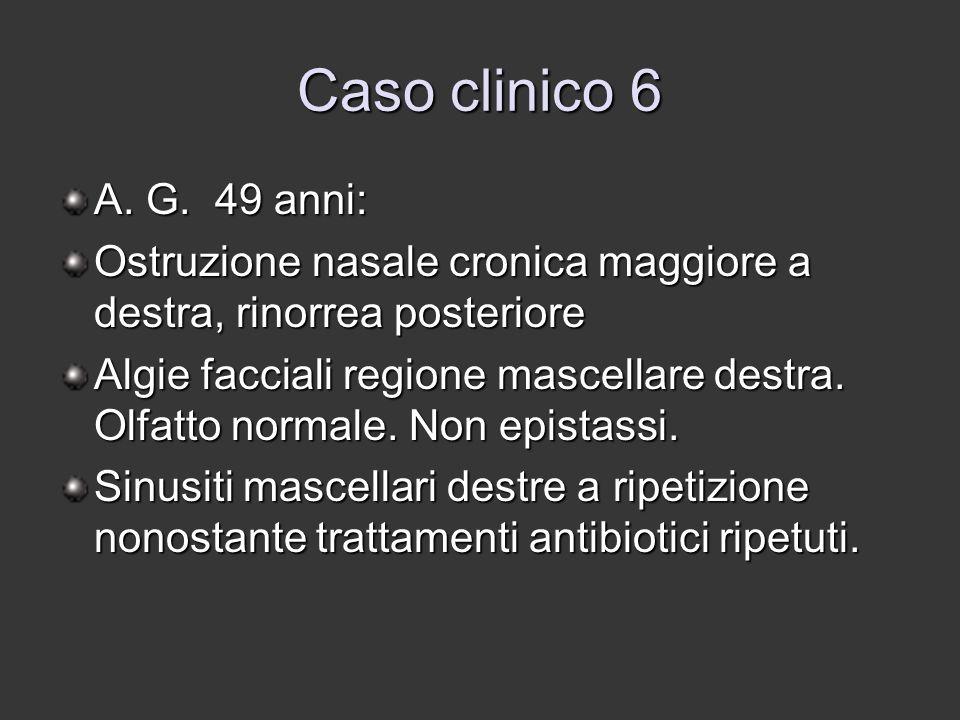 Caso clinico 6 A. G. 49 anni: Ostruzione nasale cronica maggiore a destra, rinorrea posteriore.