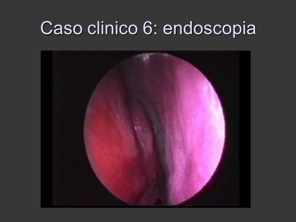 Caso clinico 6: endoscopia
